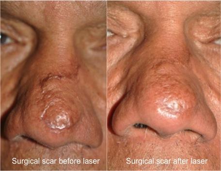Mohs scar B&A composite
