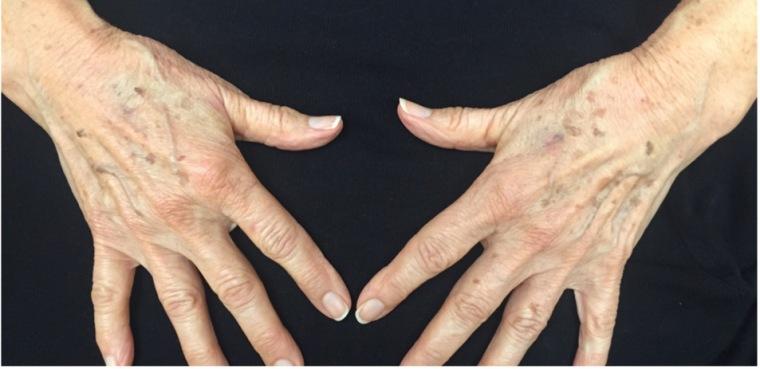 Aging hands